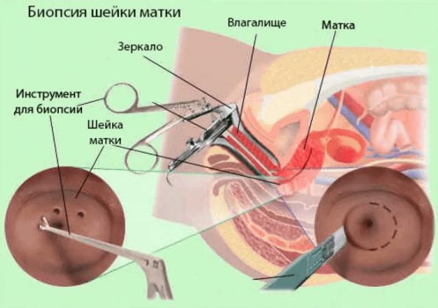 Эрозия и фоновые заболевания шейки матки