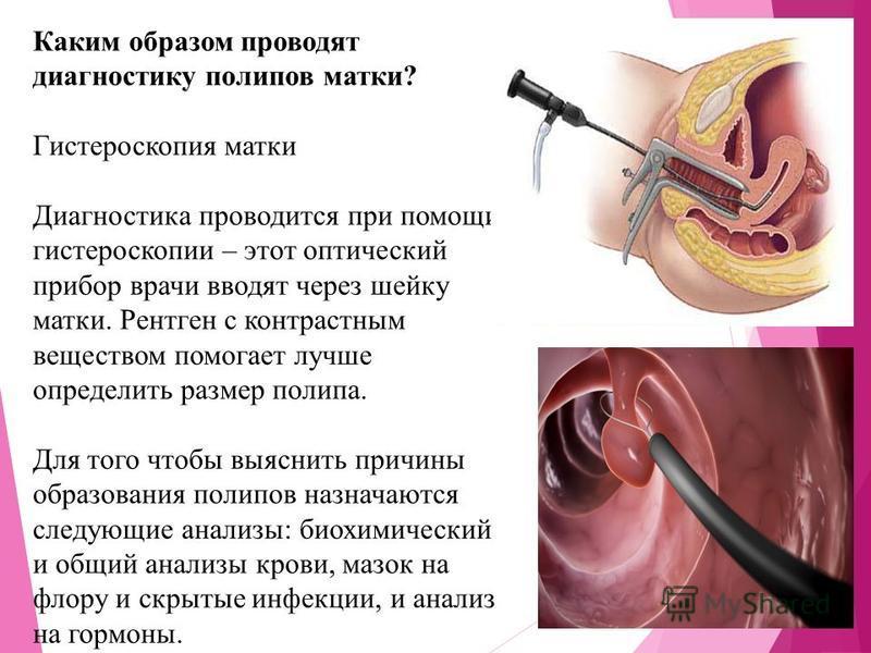 Полип что это такое виды симптоматика и лечение полипоза