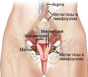Рак матки у пожилых женщин симптомы
