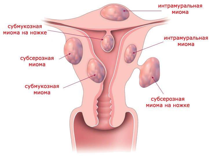 Лейомиома матки лечение народными средствами