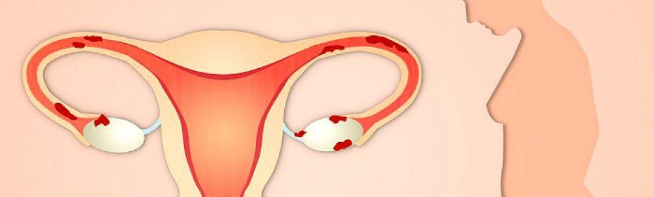 Неоднородность эндометрия норма или патология