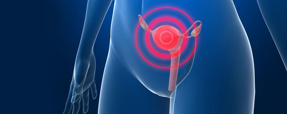 Признаки рака матки на ранних стадиях