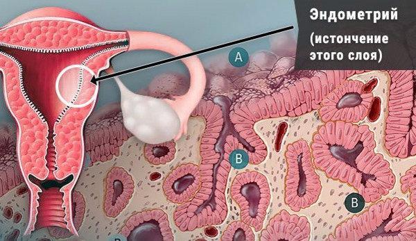 Что такое эндометрия в гинекологии