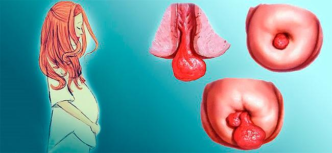 Децидуальный цервикальный полип при беременности