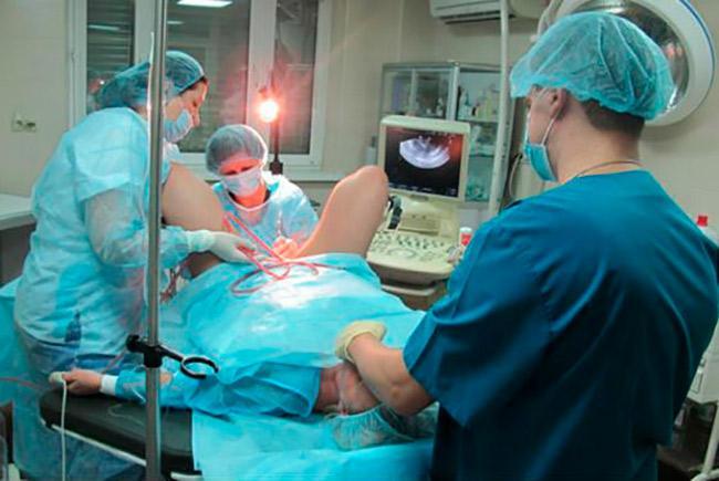 Операционное удаление полипа матки