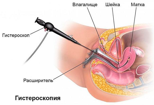 Удаления полипов в полости матки
