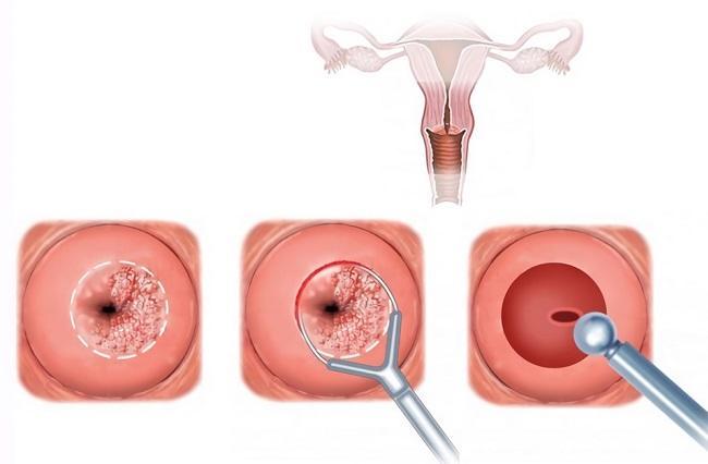 круговая биопсия