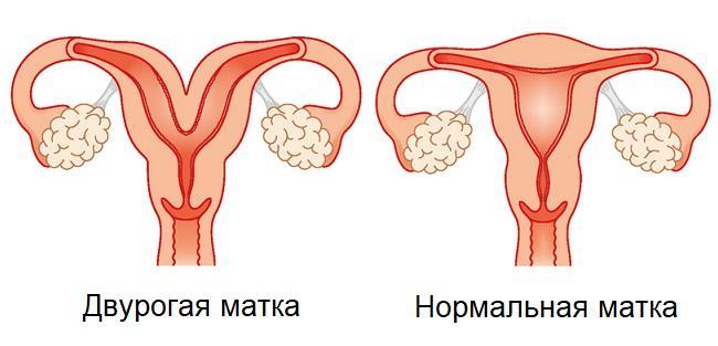 Беременность и двурогая матка