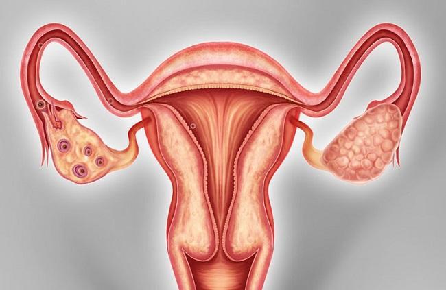 Гиперплазия яичников