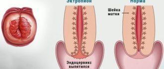 Эктропион шейки матки что это