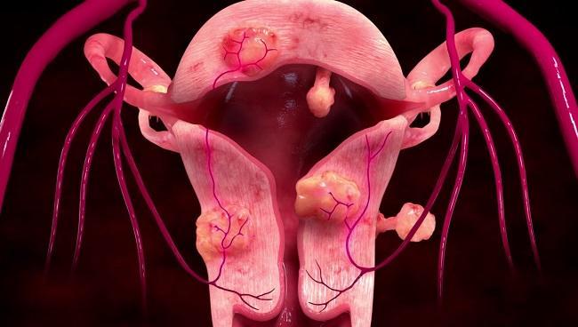 Интрамуральная миома матки что это такое