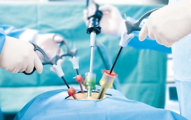лапороскопия