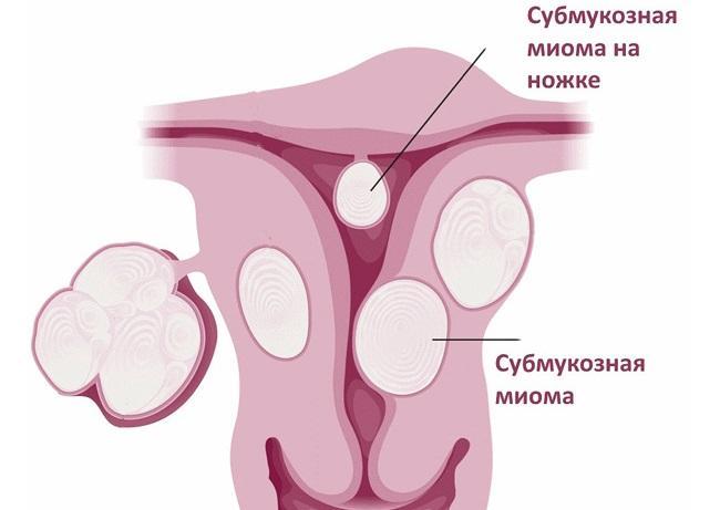 Субмукозная миома матки