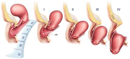 стадии опущения матки